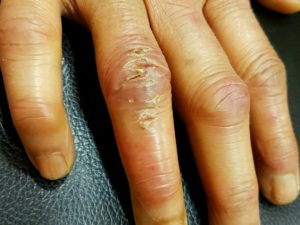 Chilblain-Red painful eruption on fingers