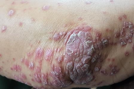 Psoriasis- Important Facts